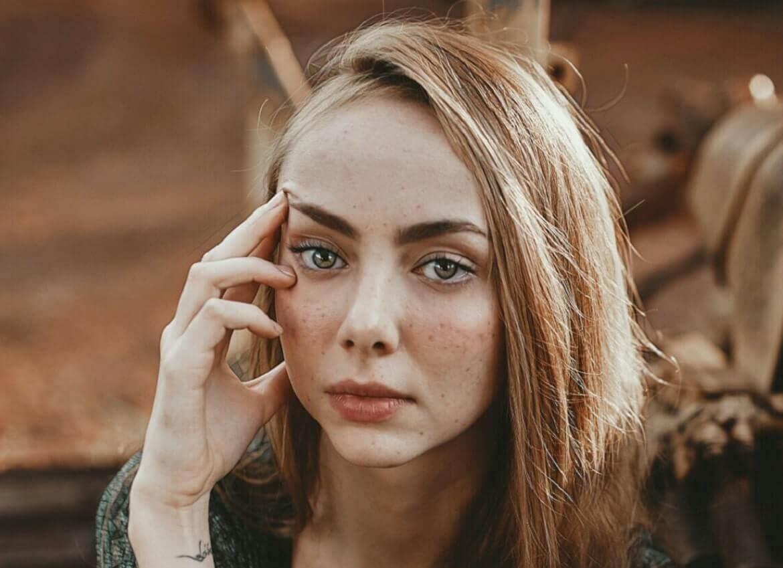 рубцы – дырки на лице после прыщей у девушки фото