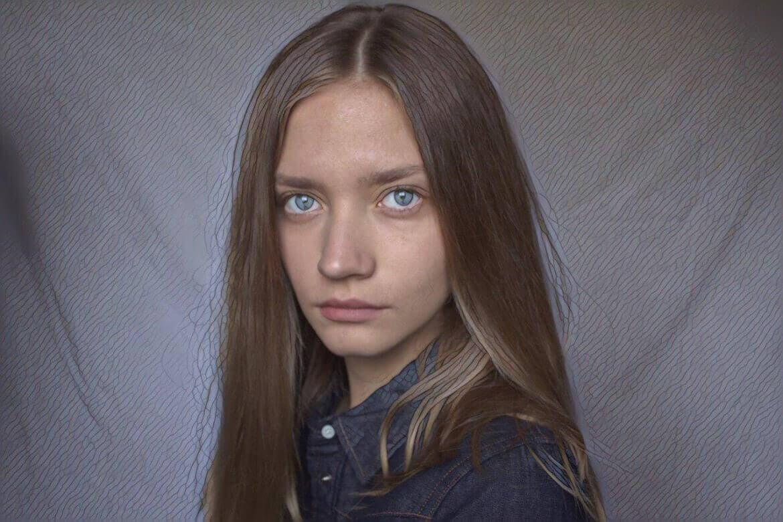 фото лба девушки после пилинга