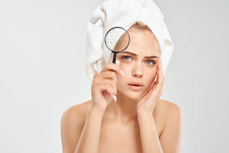 602beautiful-woman-bare-shoulders-acne-treatment-studio-closeup